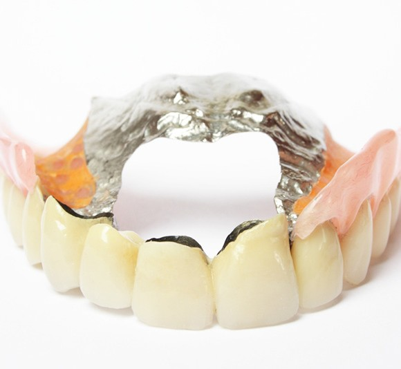 Cost of Dentures? A Denture for EVERY budget!