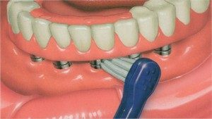 implant-supported complete denture