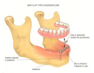o-ring-stud-retained-overdenture-bar-clip-overdenture