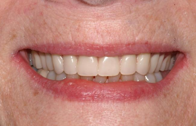 Implant-Supported Dentures Guide
