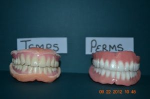 temporary and permanent dentures