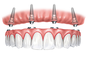 teeth in a day all on 4 dental implants toronto