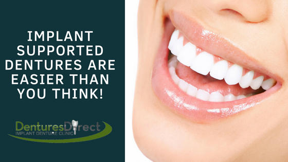 Implant Supported Dentures Are Easier Than You Think!