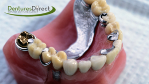 picture of removable partial dentures